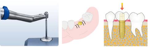 二次手術~人工の歯を作製・装着